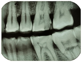 Teeth - X-ray
